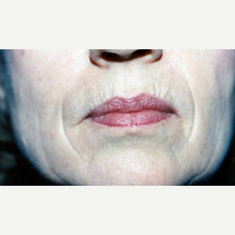 45-54 year old woman treated with Dermabrasion before 1779380