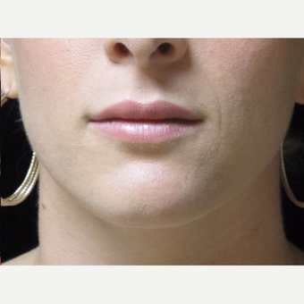 25-34 year old woman treated with Lip Augmentation after 3503004