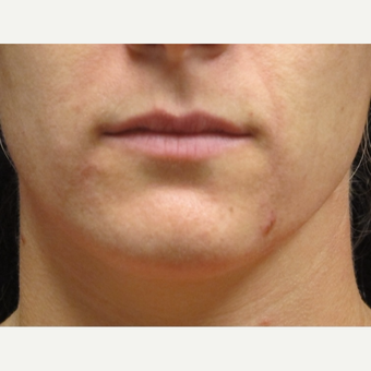 25-34 year old woman treated with Lip Augmentation before 3503004