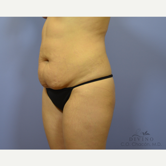 25-34 year old woman treated with Tummy Tuck before 3415707