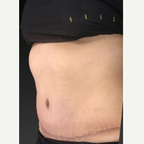 25-34 year old woman treated with Tummy Tuck 1943046