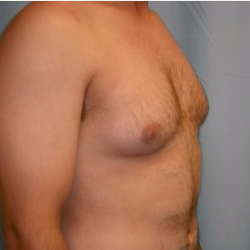 25-34 year old man treated with Breast Reduction before 3722138