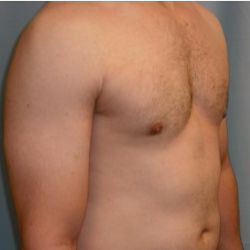 25-34 year old man treated with Breast Reduction after 3722138