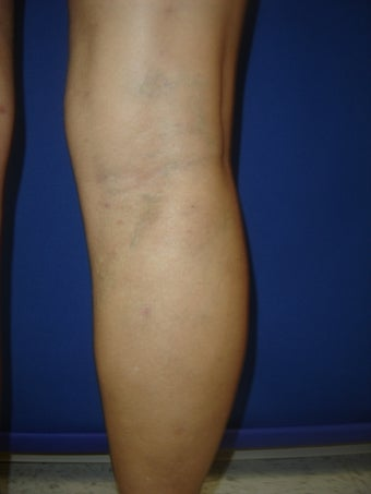55 year old man with varicose veins after 977041