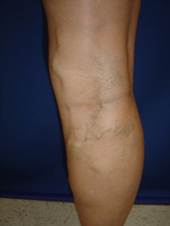 55 year old man with varicose veins before 977041