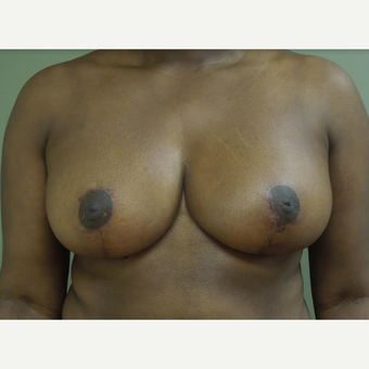 35-44 year old woman treated with Breast Reduction after 3530597