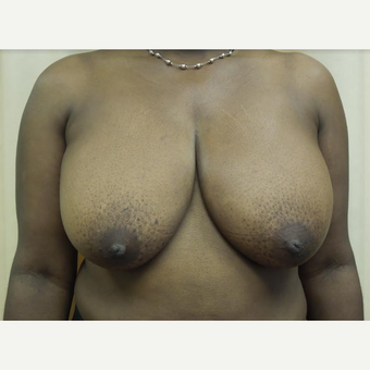 35-44 year old woman treated with Breast Reduction before 3530597