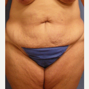 45-54 year old woman treated with Tummy Tuck before 3537302
