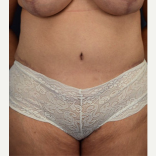 45-54 year old woman treated with Tummy Tuck after 3537302
