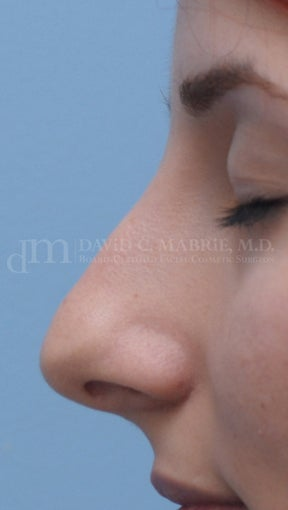Rhinoplasty before 361321
