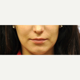 18-24 year old woman treated with Lip Augmentation before 3175911