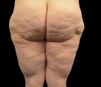35-44 year old woman treated with Liposuction before 2165188