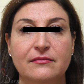 45-54 year old woman treated with Restylane for bags/dark circles under the eyes after 3416372