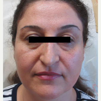 45-54 year old woman treated with Restylane for bags/dark circles under the eyes before 3416372