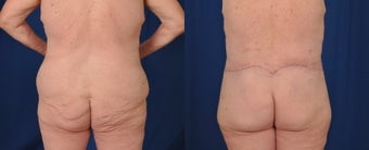 55-64 year old woman treated with Body Lift before 3487538