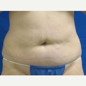 45-54 year old woman treated with Liposuction before 3163161