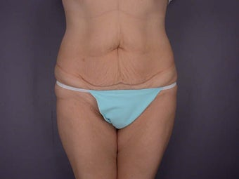 Body Contouring before 280105