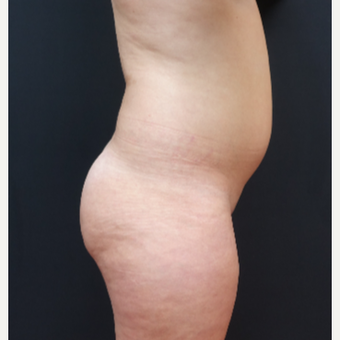 18-24 year old woman treated with Butt Augmentation before 3315498