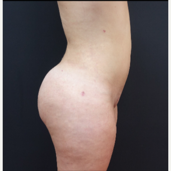 18-24 year old woman treated with Butt Augmentation after 3315498