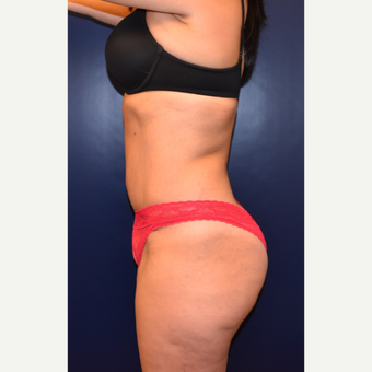 35-44 year old woman treated with Liposuction after 3631384