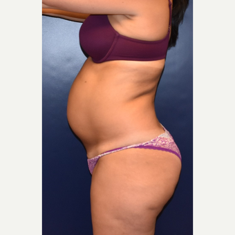 35-44 year old woman treated with Liposuction before 3631384
