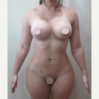 25-34 year old woman treated with Tummy Tuck after 2728396