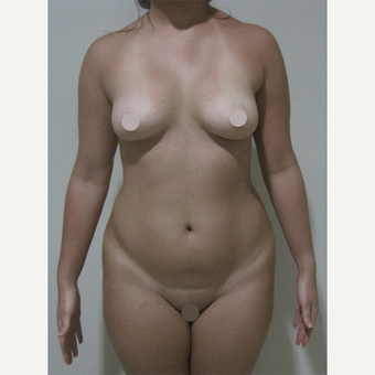25-34 year old woman treated with Tummy Tuck before 2728396