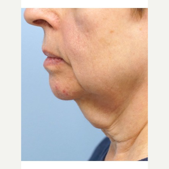 65-74 year old woman treated with Neck Lift before 3653477