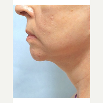 65-74 year old woman treated with Neck Lift after 3653477