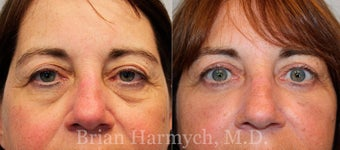 62 year-old female before and 6 months after upper and lower Eyelid Surgery and Fat Transfer before 3446196