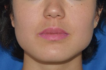Buccal Fat Removal with Dysport (Botox) Jaw Slimming before 1008115