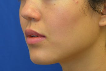 Buccal Fat Removal with Dysport (Botox) Jaw Slimming 1008115
