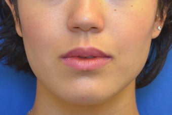 Buccal Fat Removal with Dysport (Botox) Jaw Slimming after 1008115