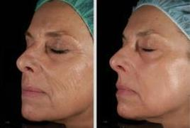 Before and after  Combined Erbium Laser Resurfacing