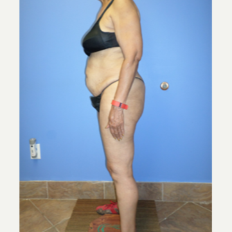 75 and up year old woman treated with Weight Loss before 3370176