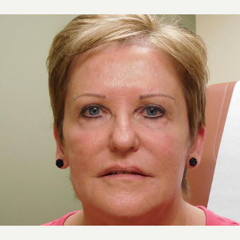 55-64 year old woman treated with Restylane after 2763099