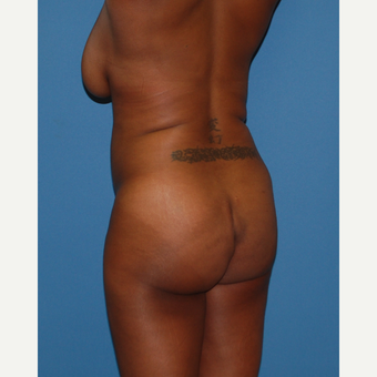 18-24 year old woman treated with Smart Lipo before 3683539