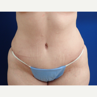 35-44 year old woman treated with Tummy Tuck after 3322491