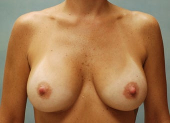 Breast Augmentation after 220173