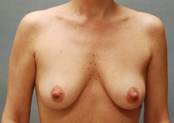 Breast Augmentation before 220173
