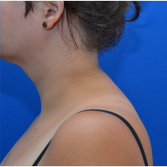 Buffalo Hump Reduction with Laser Liposuction after 3804199