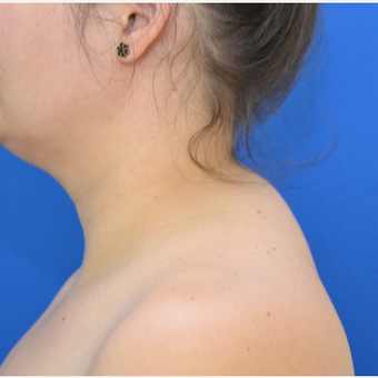 Buffalo Hump Reduction with Laser Liposuction before 3804199