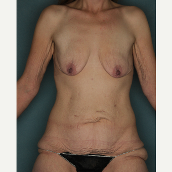37 year old woman treated with Body Lift , Breast Augmentation with Mastopexy before 3520328