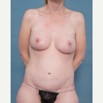 37 year old woman treated with Body Lift , Breast Augmentation with Mastopexy after 3520328