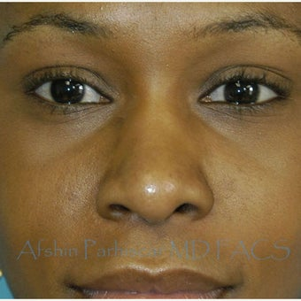 18-24 year old woman treated with African American Rhinoplasty after 1703792