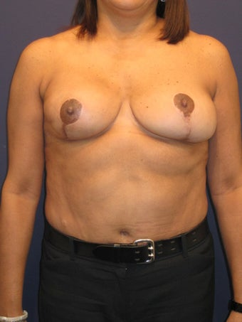 woman with history of breast radiation after fat grafting before 902968