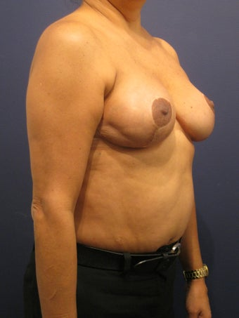 woman with history of breast radiation after fat grafting 902968