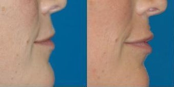 Lip filler with Juvederm before 581215