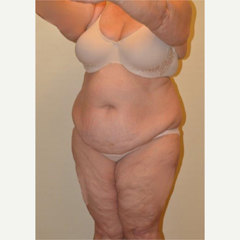 45-54 year old woman treated with Liposuction before 3658232
