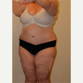 45-54 year old woman treated with Liposuction after 3658232